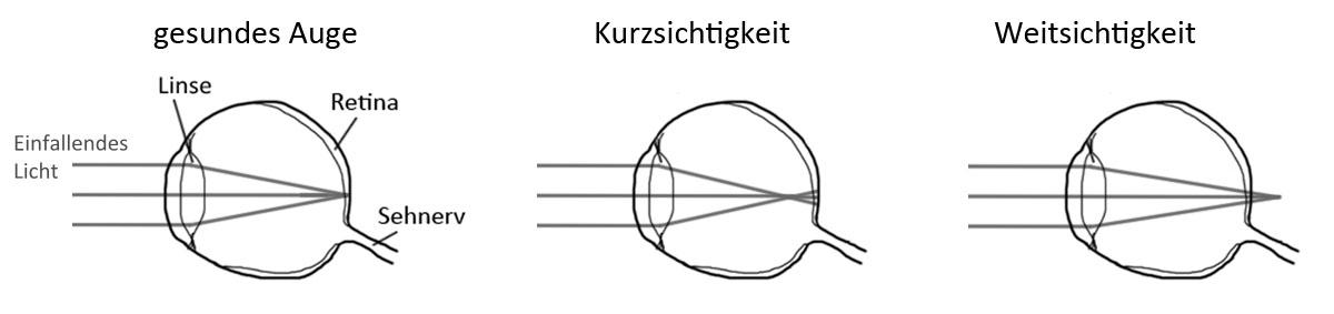 links kurzsichtig rechts weitsichtig