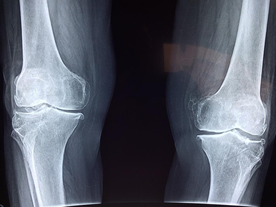 Plica: Der versteckte Störenfried im Knie