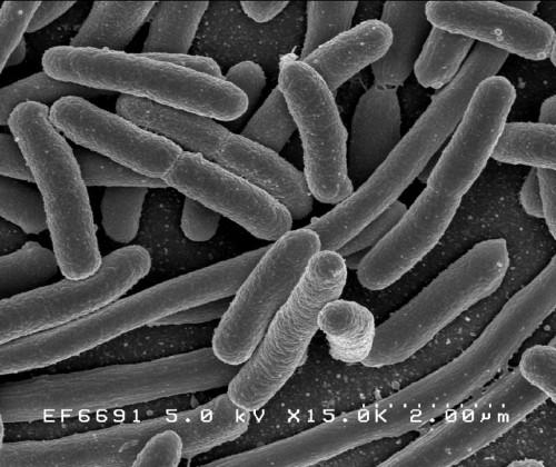 E.Coli - quasi Götter in der Welt der Protonen! (BIld:  Rocky Mountain Laboratories, NIAID, NIH, gemeinfrei)