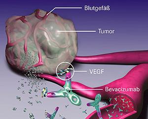 angiogenese2 (krebsgesellschaft.de)