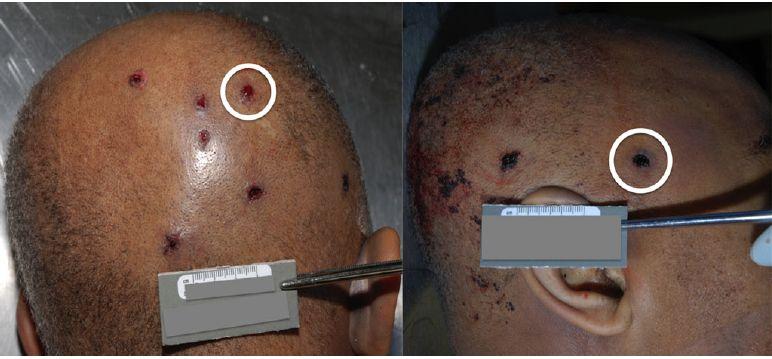 WTF Forensik – Was tun mit Kopfschuss?