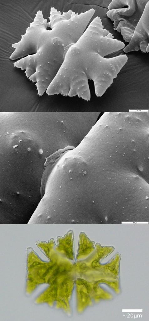 Elektronen- und Durchlichtmikroskopbilder der Süßwasseralge Micrasterias.