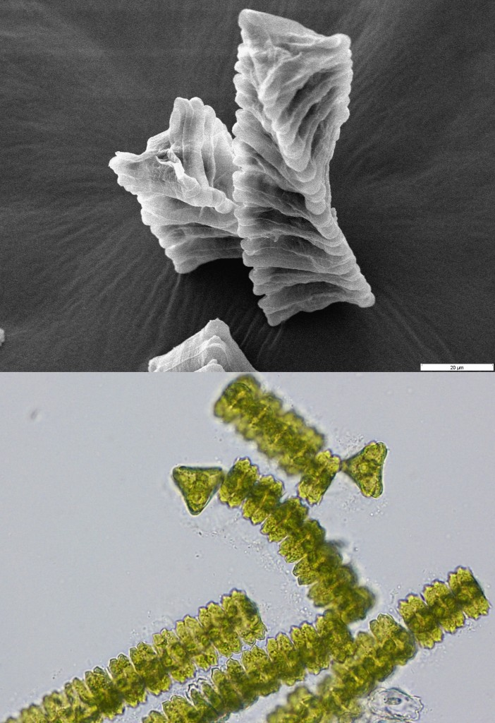 Elektronen- und Durchlichtmikroskopbilder einer Süßwasseralge der Gattung Desmidium