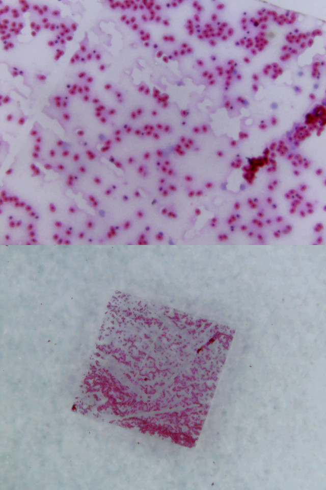 Froschblut mit dem USB-Mikroskop