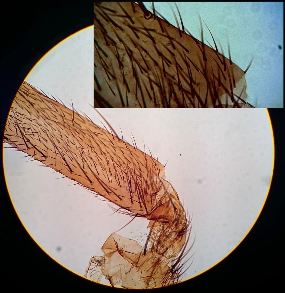 Vergleich: Fliegenbeinbilder auf Olympus Mikroskop, rechts oben Bresser Kamera, rundes Bild Mobiltelefon.