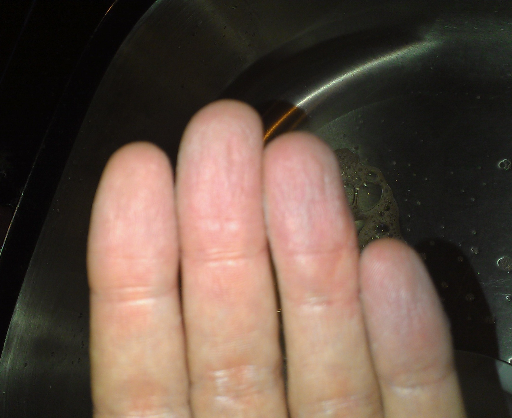 Haut Löst Sich An Fingerkuppen Kind