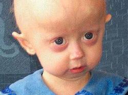 i-181fbee1dbc9a0bb0cc45c8c01f65b5a-Progeriaface-thumb-250x186.jpg