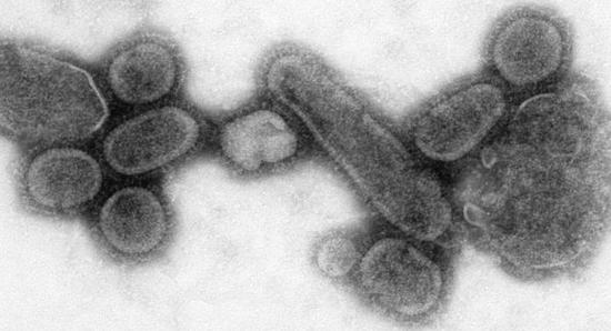 i-1ac8d35c7cdbc73c983deead5f488f12-1918_influenza-thumb-550x298.jpg