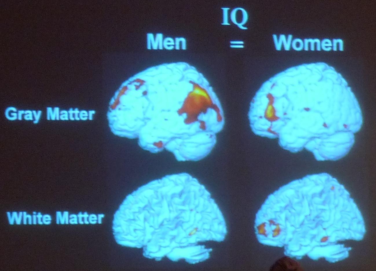 Viagra Cialis Brain Tumor